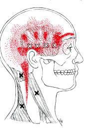 Hoofdpijn vanuit nek oefeningen