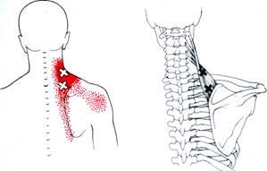 Pijn in nek en schouder stress