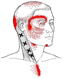 brandende spieren en gewrichten